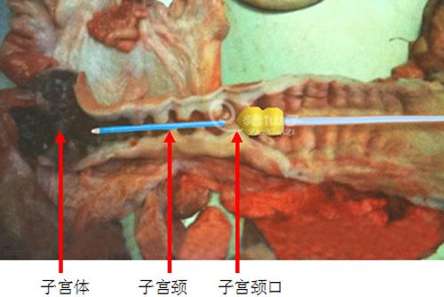 阴户愺n�9��_在推进过程中,要注意将母猪阴户向操作者方向牵引固定,防止阴唇成皱折